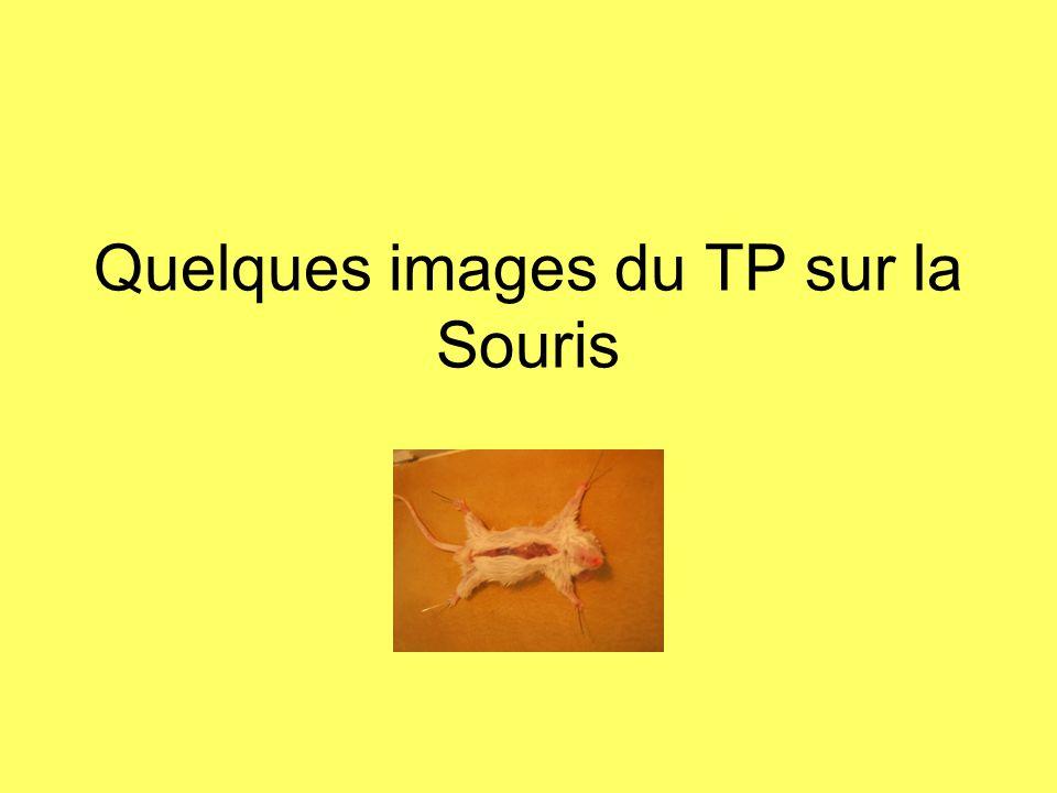 Quelques images du TP sur la Souris