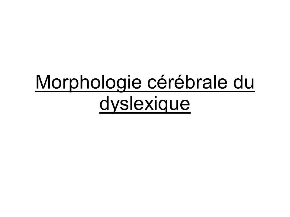 Morphologie cérébrale du dyslexique