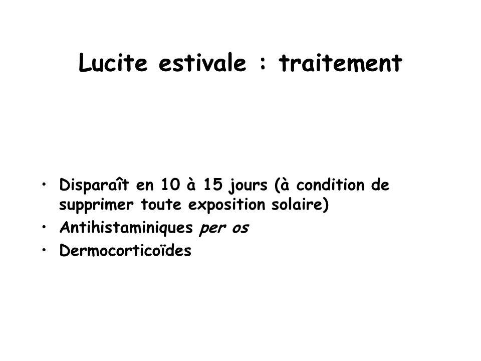 Lucite estivale : traitement Disparaît en 10 à 15 jours (à condition de supprimer toute exposition solaire) Antihistaminiques per os Dermocorticoïdes