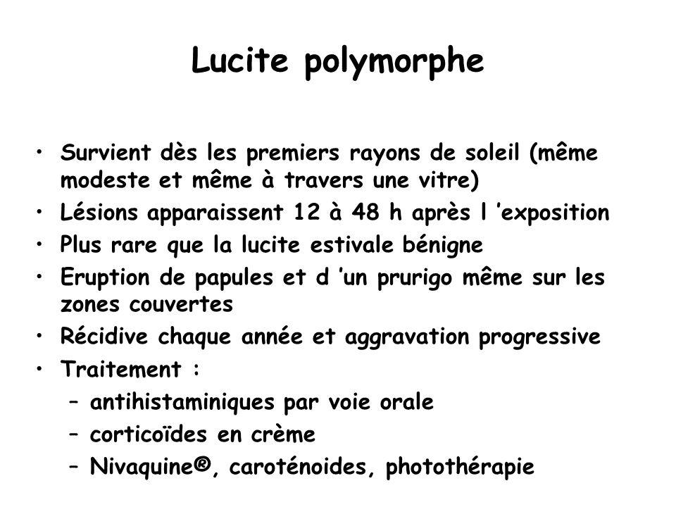 Lucite polymorphe Survient dès les premiers rayons de soleil (même modeste et même à travers une vitre) Lésions apparaissent 12 à 48 h après l 'exposi