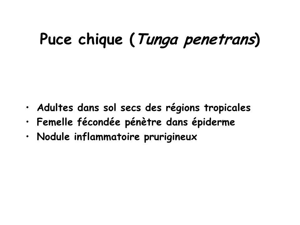 Puce chique (Tunga penetrans) Adultes dans sol secs des régions tropicales Femelle fécondée pénètre dans épiderme Nodule inflammatoire prurigineux