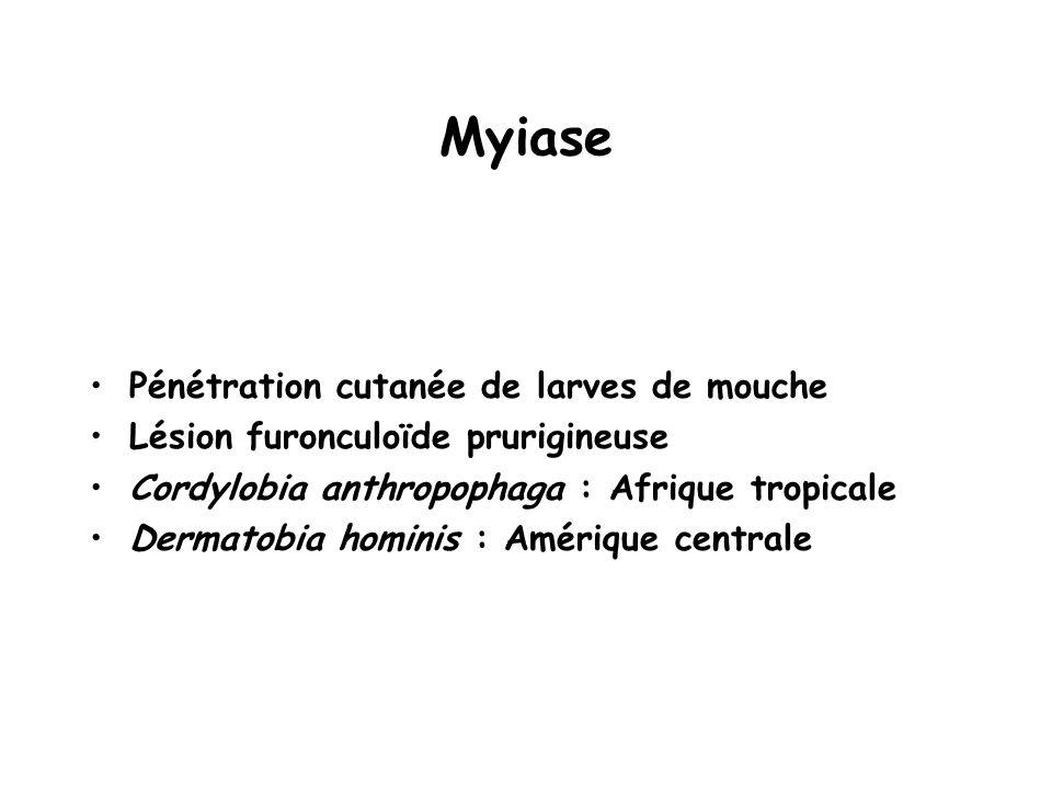 Myiase Pénétration cutanée de larves de mouche Lésion furonculoïde prurigineuse Cordylobia anthropophaga : Afrique tropicale Dermatobia hominis : Amér