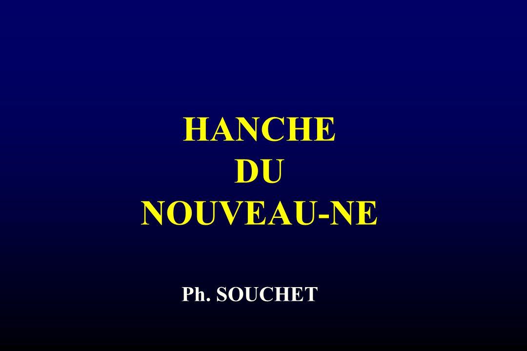LUXATION CONGENITALE DE HANCHE MALADIE LUXANTE DE HANCHE