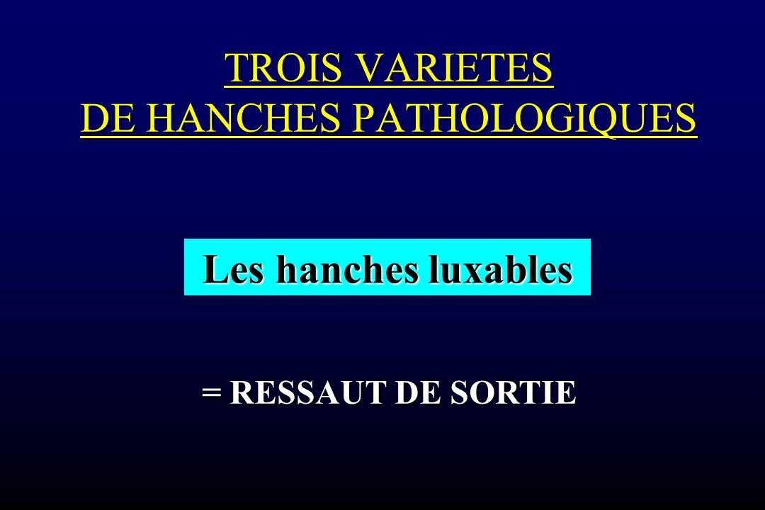 TROIS VARIETES DE HANCHES PATHOLOGIQUES TROIS VARIETES DE HANCHES PATHOLOGIQUES Les hanches luxables = RESSAUT DE SORTIE