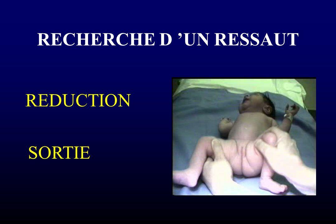 RECHERCHE D 'UN RESSAUT REDUCTION SORTIE