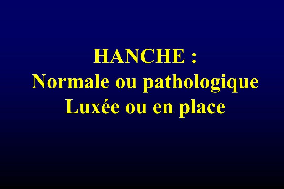 HANCHE : Normale ou pathologique Luxée ou en place