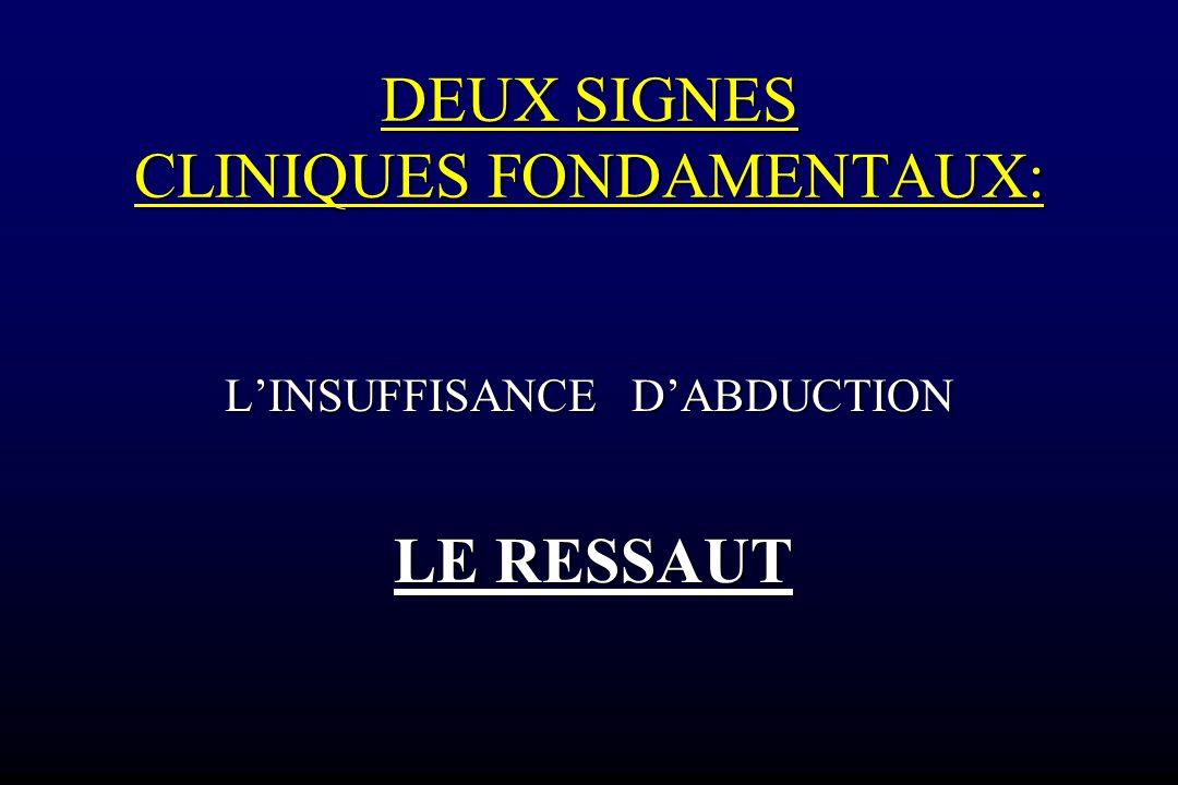 DEUX SIGNES CLINIQUES FONDAMENTAUX: L'INSUFFISANCE D'ABDUCTION LE RESSAUT