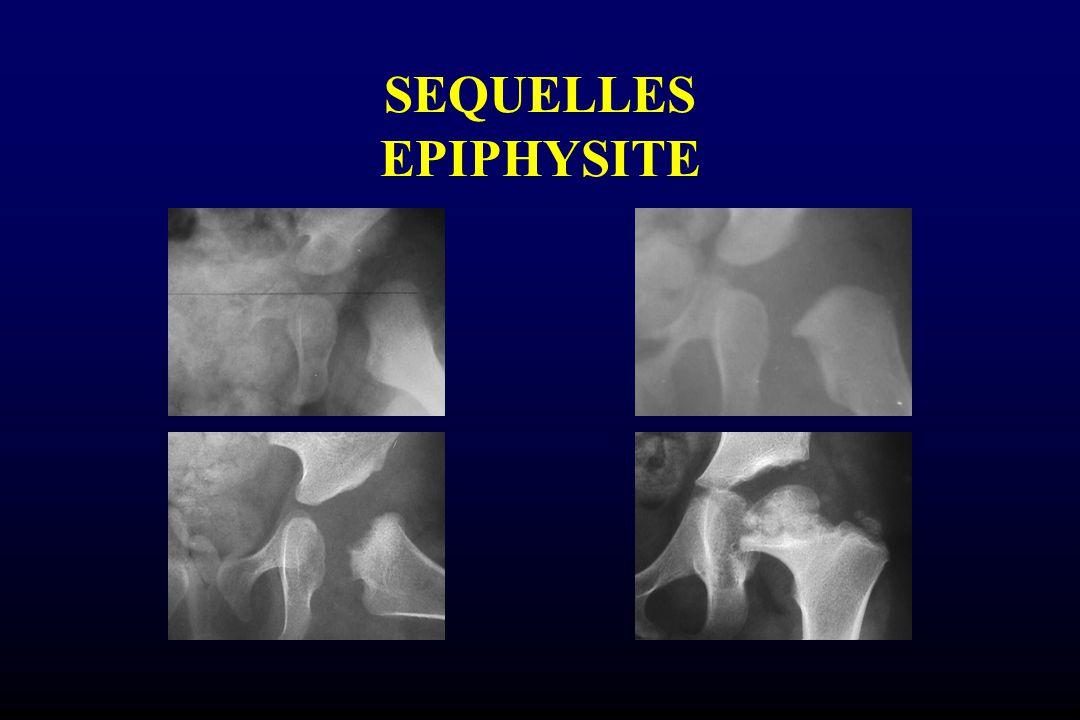 SEQUELLES EPIPHYSITE