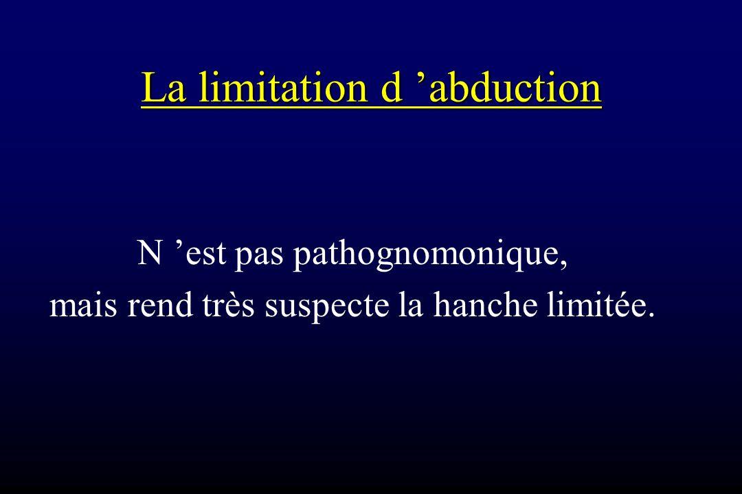 La limitation d 'abduction N 'est pas pathognomonique, mais rend très suspecte la hanche limitée.