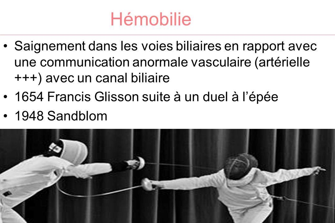 Hémobilie Saignement dans les voies biliaires en rapport avec une communication anormale vasculaire (artérielle +++) avec un canal biliaire 1654 Franc