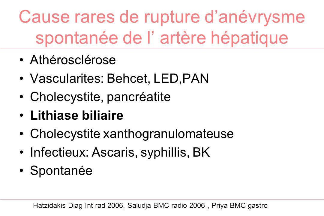 Cause rares de rupture d'anévrysme spontanée de l' artère hépatique Athérosclérose Vascularites: Behcet, LED,PAN Cholecystite, pancréatite Lithiase bi