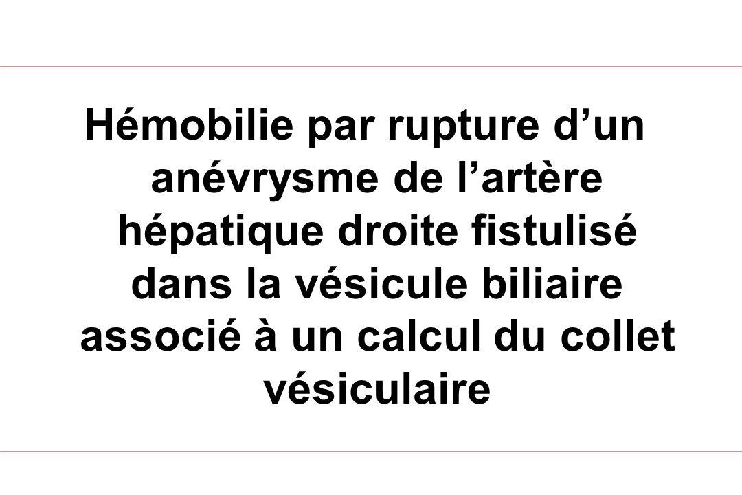 Conclusion Plus fréquent depuis radiologie percutanée Peut survenir à distance du traumatisme Rechercher causes rares Embolisation 1 ère intention Cholecystectomie non systématique