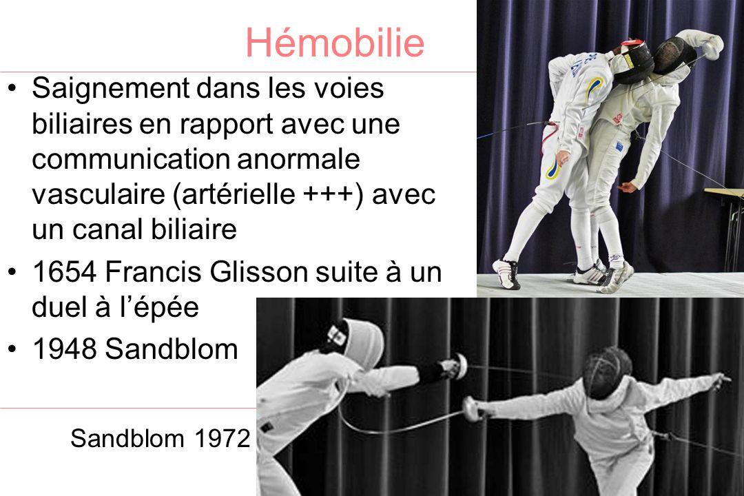 Hémobilie Saignement dans les voies biliaires en rapport avec une communication anormale vasculaire (artérielle +++) avec un canal biliaire 1654 Francis Glisson suite à un duel à l'épée 1948 Sandblom Sandblom 1972 Yoshida 1987