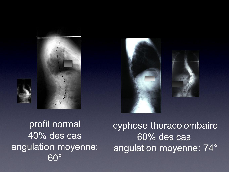 profil normal 40% des cas angulation moyenne: 60° cyphose thoracolombaire 60% des cas angulation moyenne: 74°