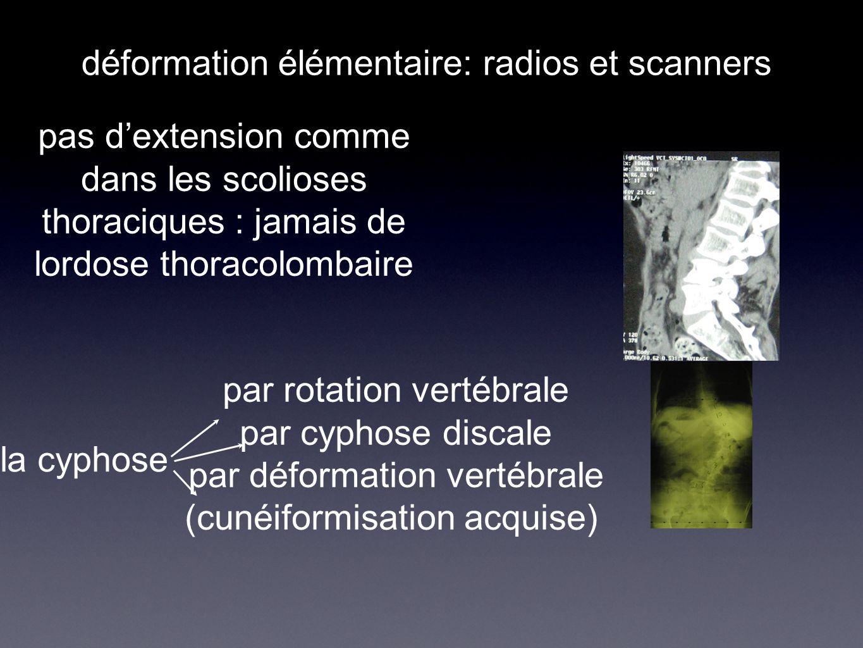 déformation élémentaire: radios et scanners pas d'extension comme dans les scolioses thoraciques : jamais de lordose thoracolombaire la cyphose par ro