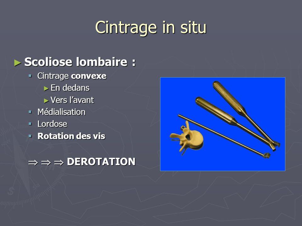 Cintrage in situ ► Scoliose lombaire :  Cintrage convexe ► En dedans ► Vers l'avant  Médialisation  Lordose  Rotation des vis    DEROTATION