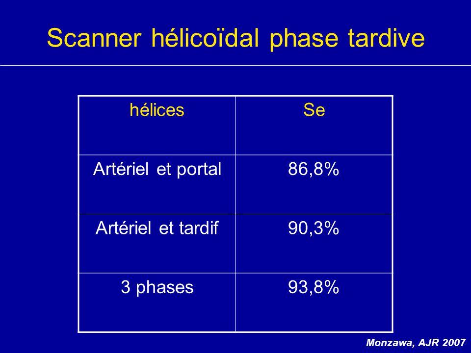 Scanner hélicoïdal phase tardive hélicesSe Artériel et portal86,8% Artériel et tardif90,3% 3 phases93,8% Monzawa, AJR 2007