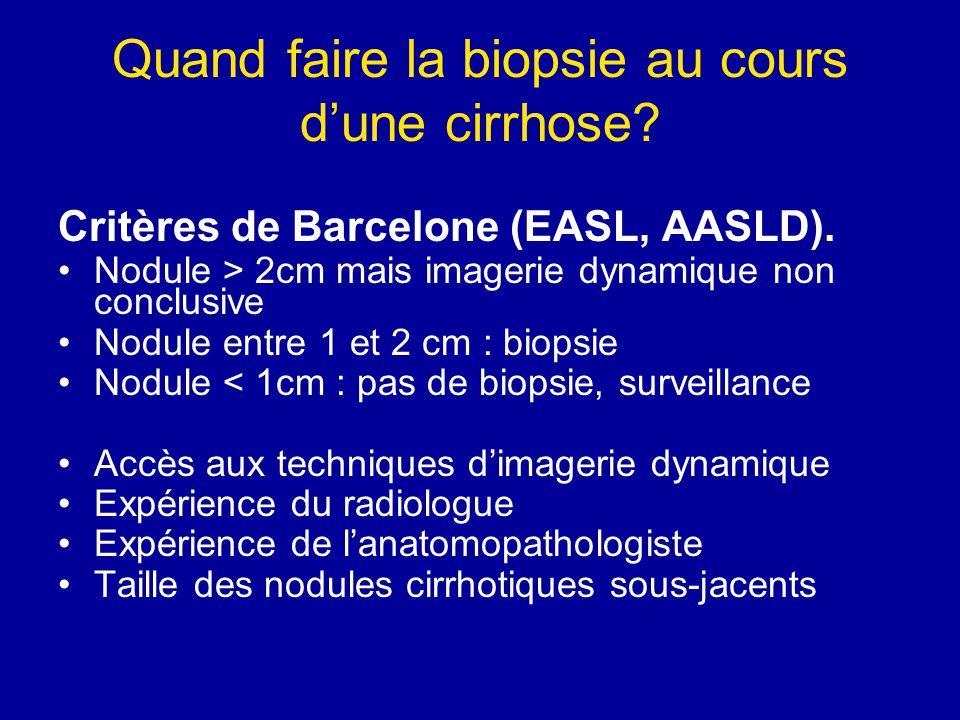 Quand faire la biopsie au cours d'une cirrhose? Critères de Barcelone (EASL, AASLD). Nodule > 2cm mais imagerie dynamique non conclusive Nodule entre