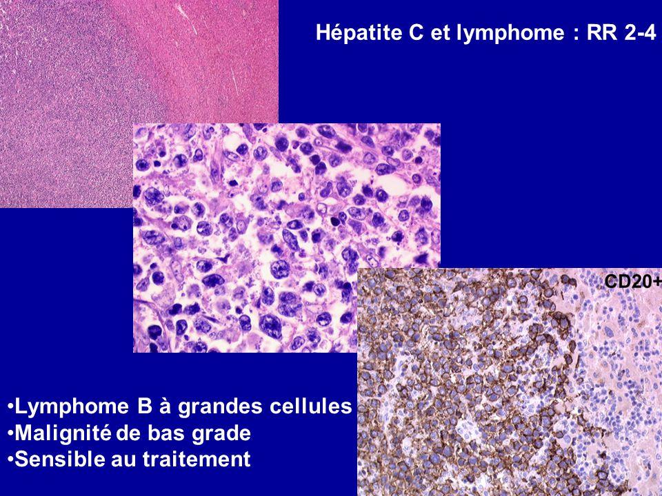 Hépatite C et lymphome : RR 2-4 Lymphome B à grandes cellules Malignité de bas grade Sensible au traitement