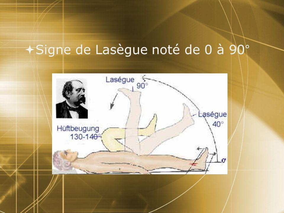 Signe de Lasègue noté de 0 à 90°