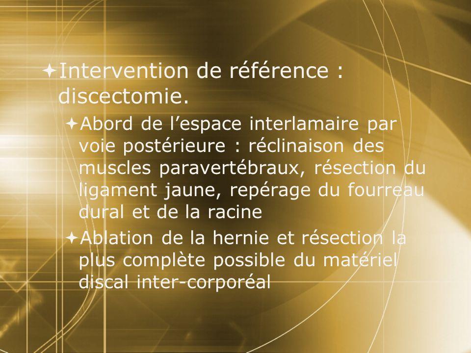  Intervention de référence : discectomie.  Abord de l'espace interlamaire par voie postérieure : réclinaison des muscles paravertébraux, résection d