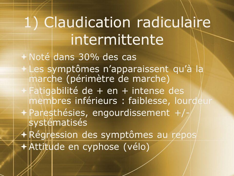 1) Claudication radiculaire intermittente  Noté dans 30% des cas  Les symptômes n'apparaissent qu'à la marche (périmètre de marche)  Fatigabilité d