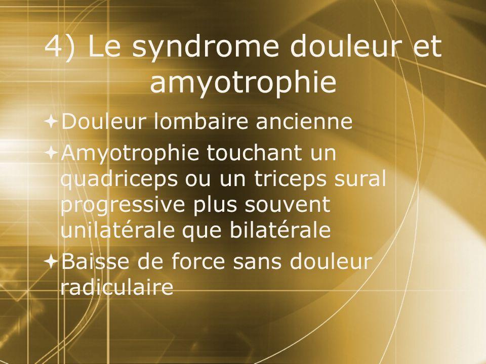 4) Le syndrome douleur et amyotrophie  Douleur lombaire ancienne  Amyotrophie touchant un quadriceps ou un triceps sural progressive plus souvent un