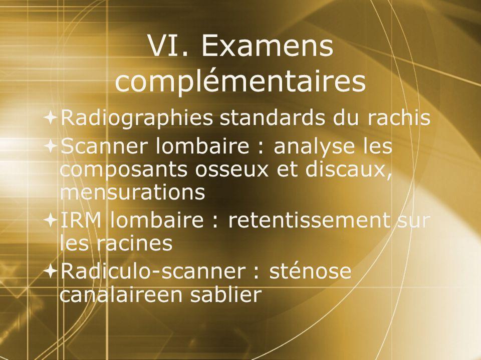 VI. Examens complémentaires  Radiographies standards du rachis  Scanner lombaire : analyse les composants osseux et discaux, mensurations  IRM lomb