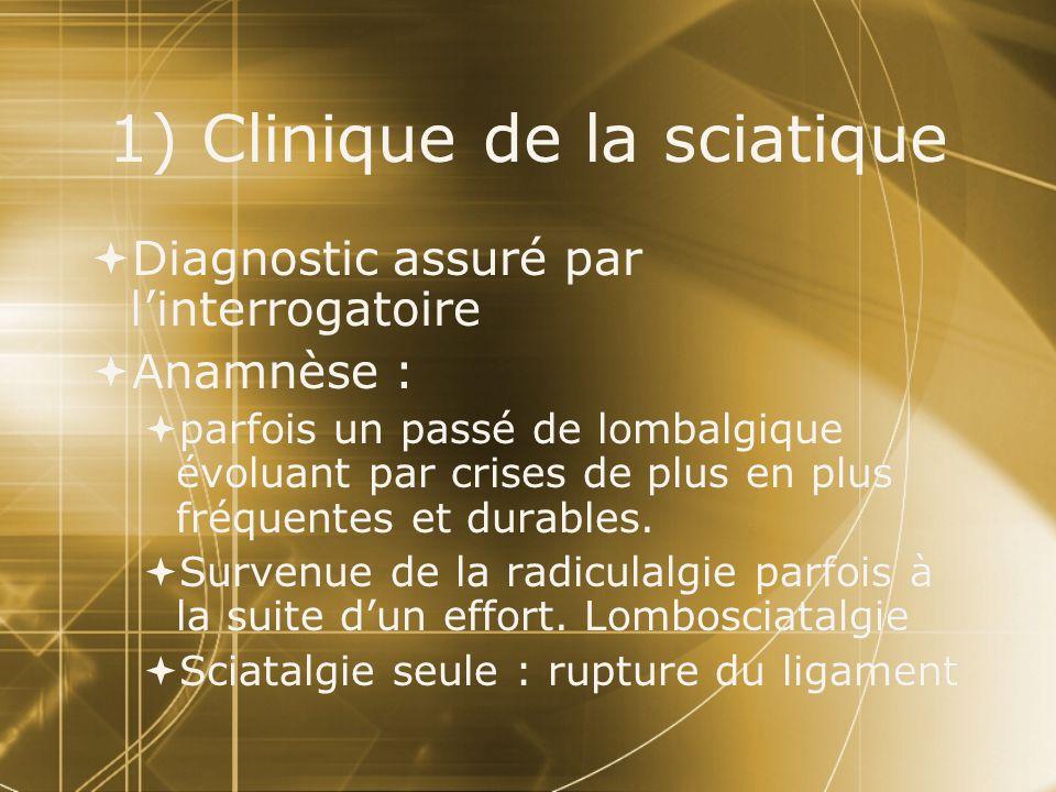 1) Clinique de la sciatique  Diagnostic assuré par l'interrogatoire  Anamnèse :  parfois un passé de lombalgique évoluant par crises de plus en plu