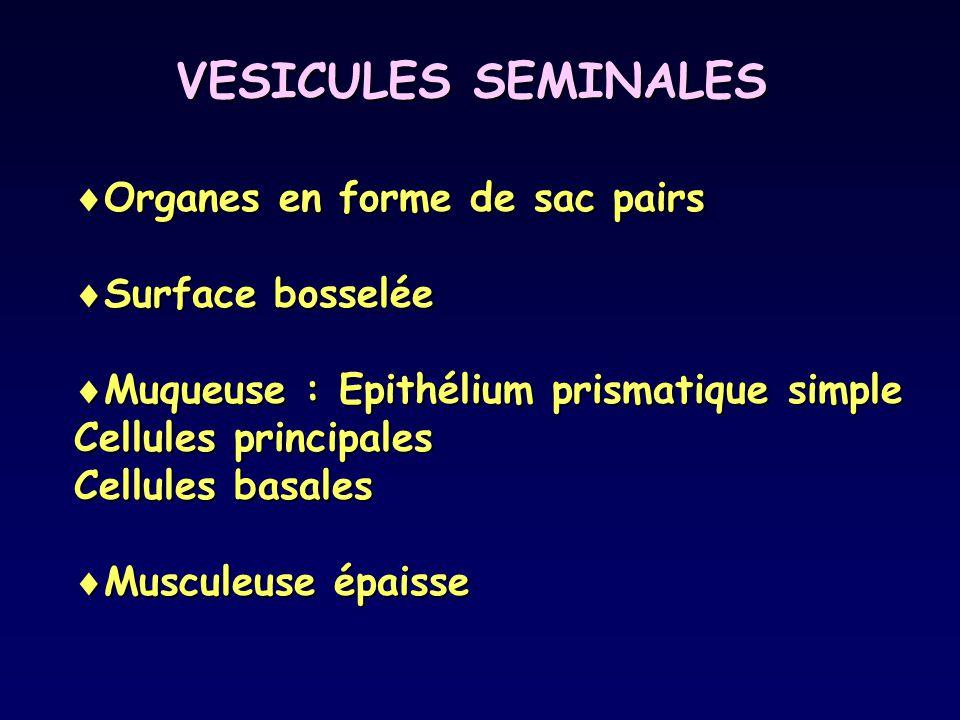 VESICULES SEMINALES  Organes en forme de sac pairs  Surface bosselée  Muqueuse : Epithélium prismatique simple Cellules principales Cellules basale