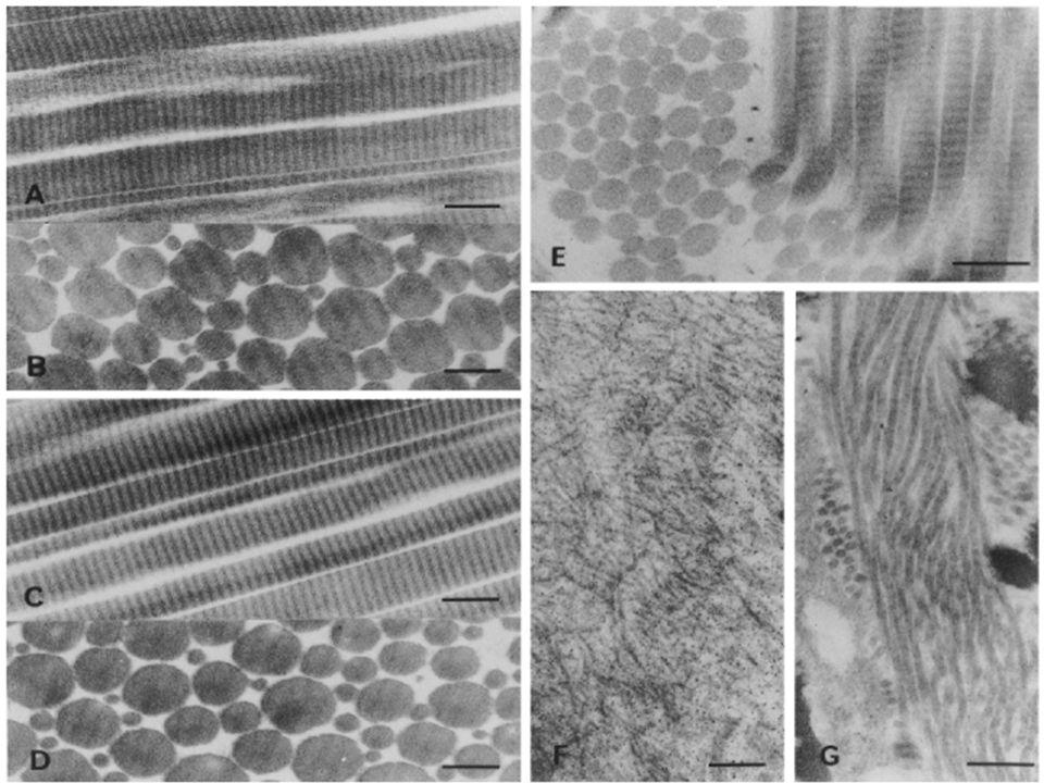 48 Collagène en microscopie électronique