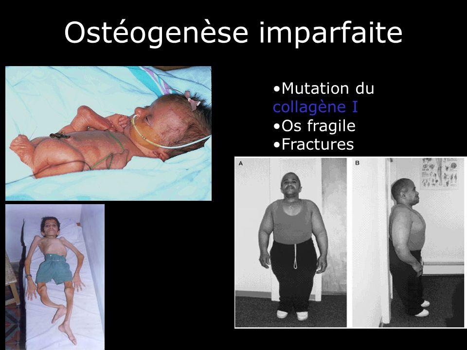 59 Ostéogenèse imparfaite Mutation du collagène I Os fragile Fractures