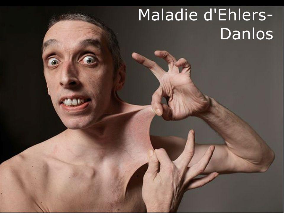 62 Maladie d'Ehlers- Danlos