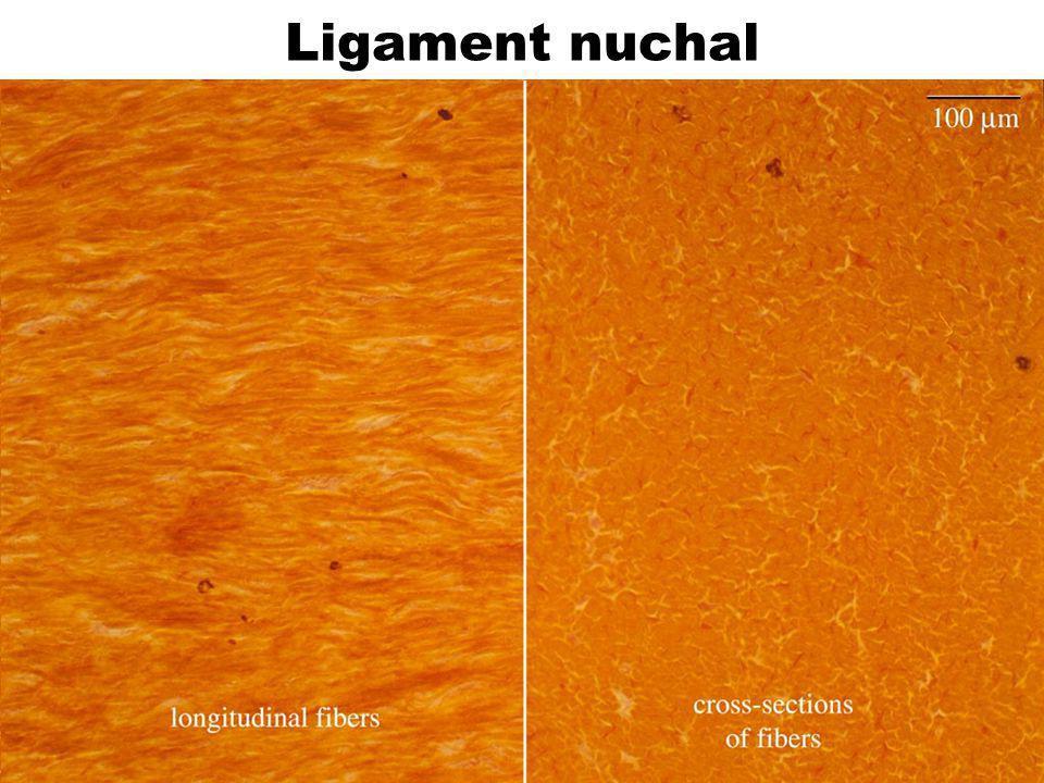 40 Ligament nuchal