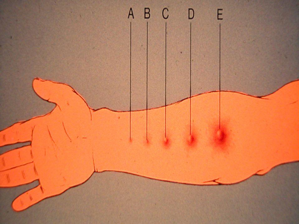 Diagnostic clinique Interrogatoire Examen clinique Tests Cutanés: Prick-test avec des extraits allergèniques