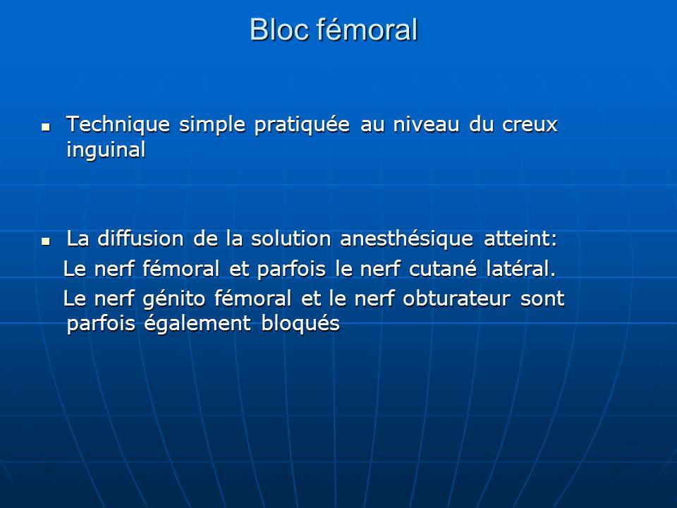 Bloc fémoral Technique simple pratiquée au niveau du creux inguinal Technique simple pratiquée au niveau du creux inguinal La diffusion de la solution