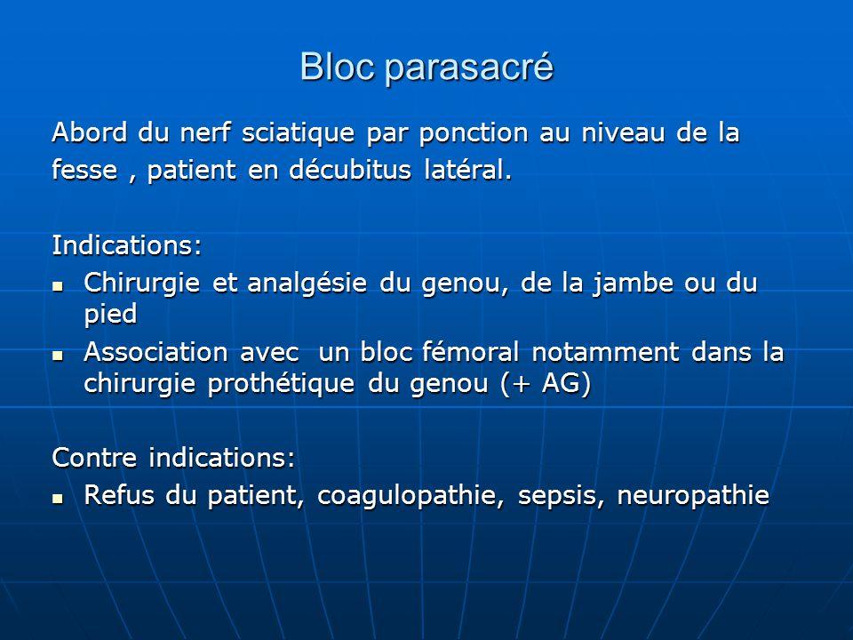 Bloc parasacré Abord du nerf sciatique par ponction au niveau de la fesse, patient en décubitus latéral. Indications: Chirurgie et analgésie du genou,