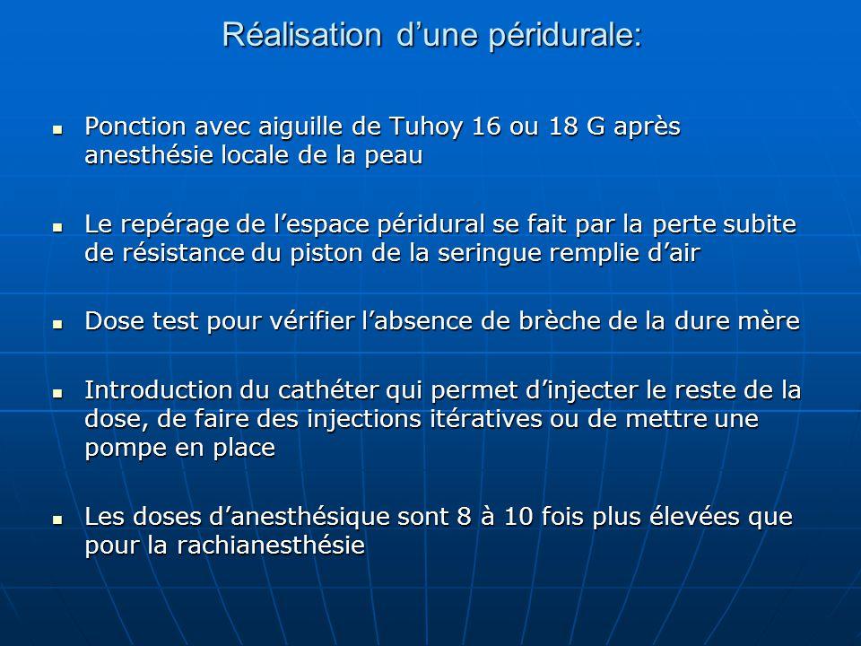 Réalisation d'une péridurale: Ponction avec aiguille de Tuhoy 16 ou 18 G après anesthésie locale de la peau Ponction avec aiguille de Tuhoy 16 ou 18 G