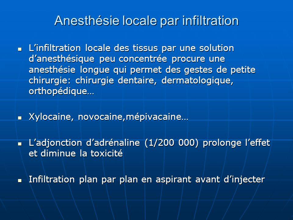 Anesthésie locale par infiltration L'infiltration locale des tissus par une solution d'anesthésique peu concentrée procure une anesthésie longue qui p