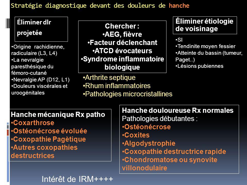 Stratégie diagnostique devant des douleurs de hanche Éliminer dlr projetée Éliminer étiologie de voisinage Origine rachidienne, radiculaire (L3, L4) L