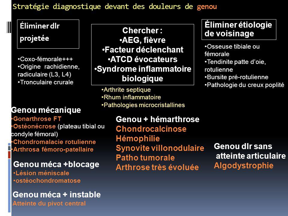 Stratégie diagnostique devant des douleurs de genou Éliminer dlr projetée Éliminer étiologie de voisinage Coxo-fémorale+++ Origine rachidienne, radicu