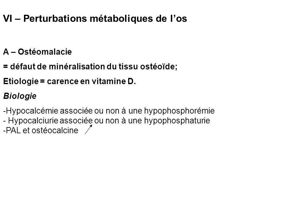 VI – Perturbations métaboliques de l'os A – Ostéomalacie = défaut de minéralisation du tissu ostéoïde; Etiologie = carence en vitamine D.