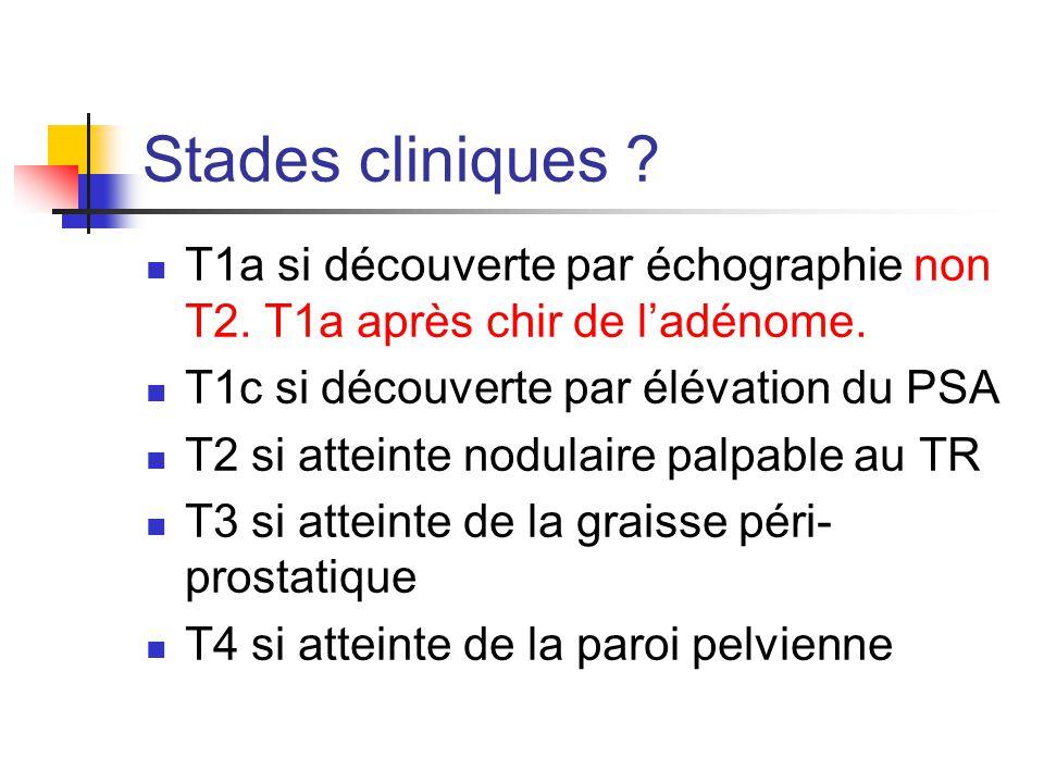 Stades cliniques .T1a si découverte par échographie non T2.