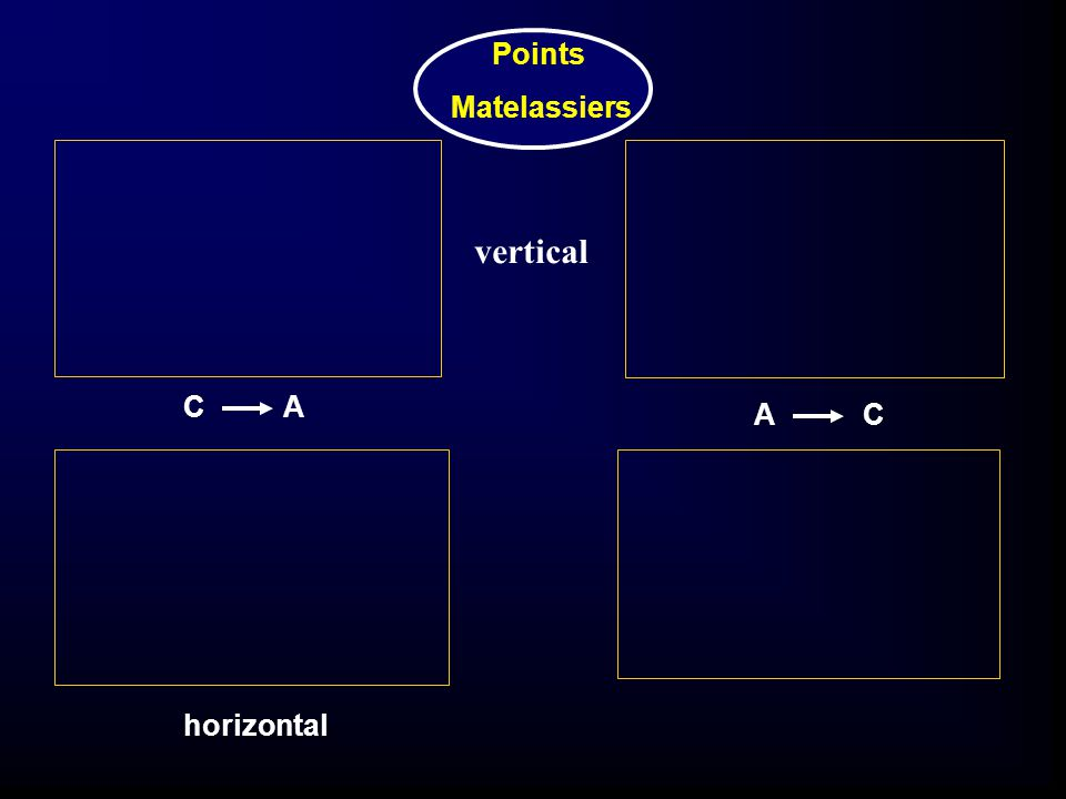 Points Matelassiers vertical CA AC horizontal