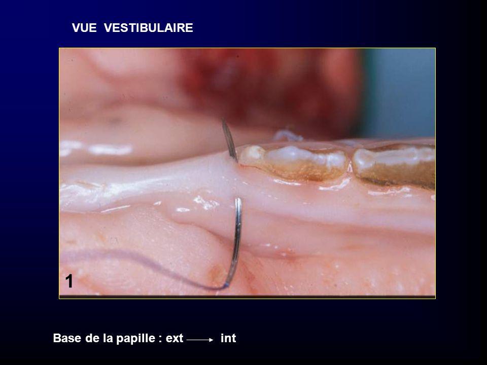 VUE OCCLUSALE L V 2 Le fil contourne la face linguale et ressort en vestibulaire sous le point de contact