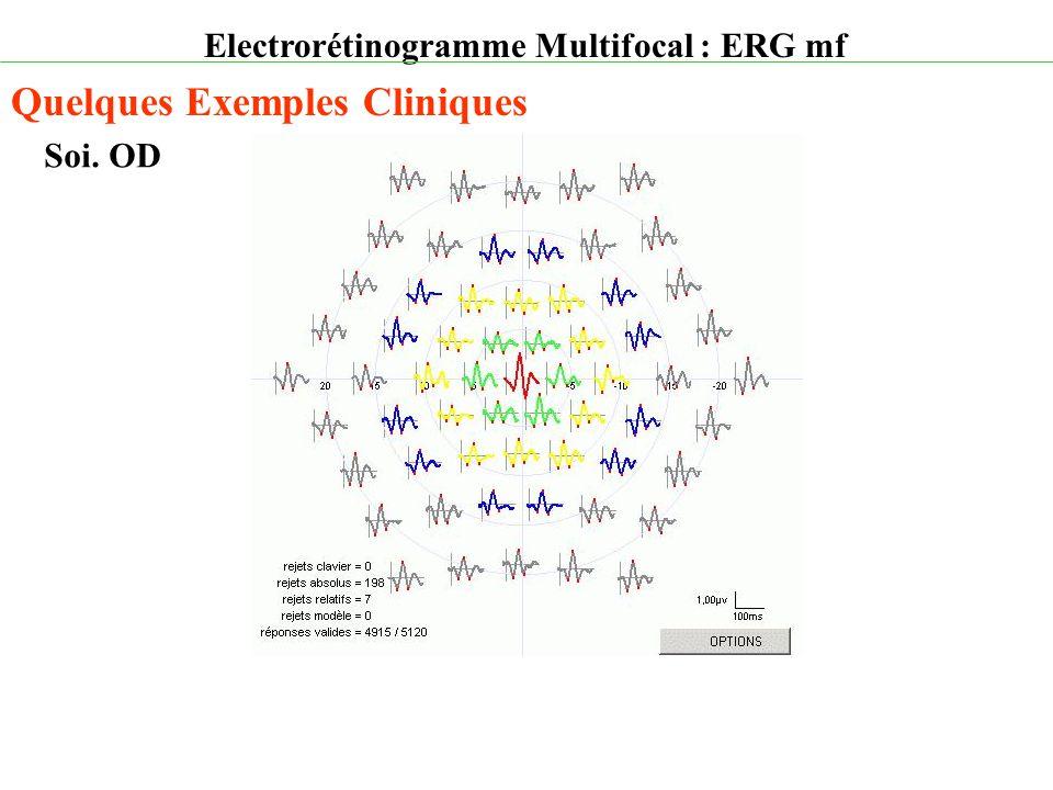 Electrorétinogramme Multifocal : ERG mf Quelques Exemples Cliniques Soi. OD