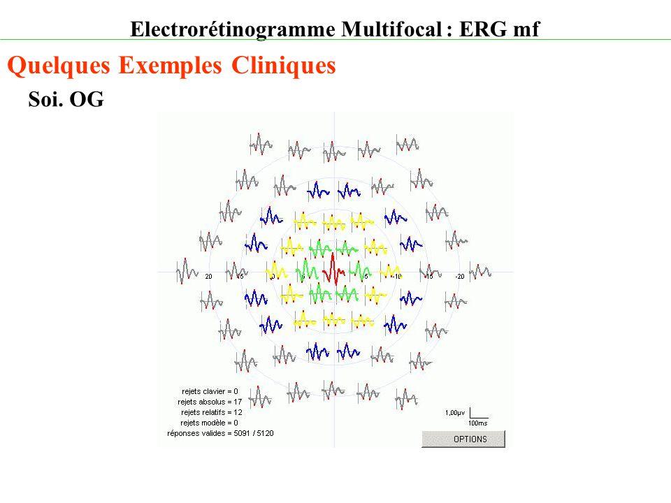Electrorétinogramme Multifocal : ERG mf Quelques Exemples Cliniques Soi. OG