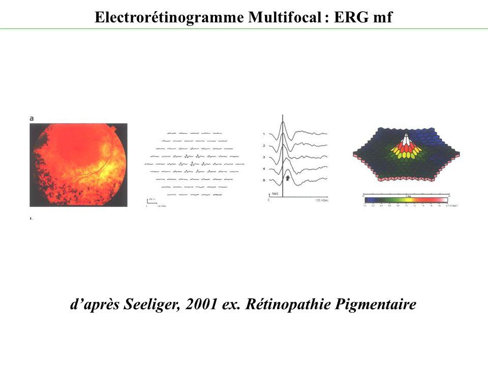 d'après Seeliger, 2001 ex. Rétinopathie Pigmentaire Electrorétinogramme Multifocal : ERG mf