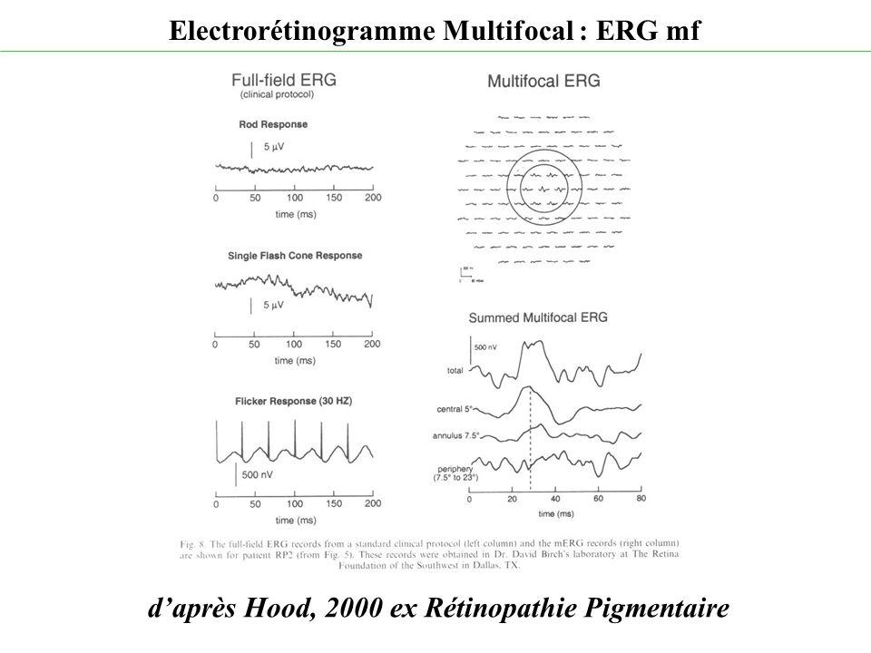 d'après Hood, 2000 ex Rétinopathie Pigmentaire Electrorétinogramme Multifocal : ERG mf