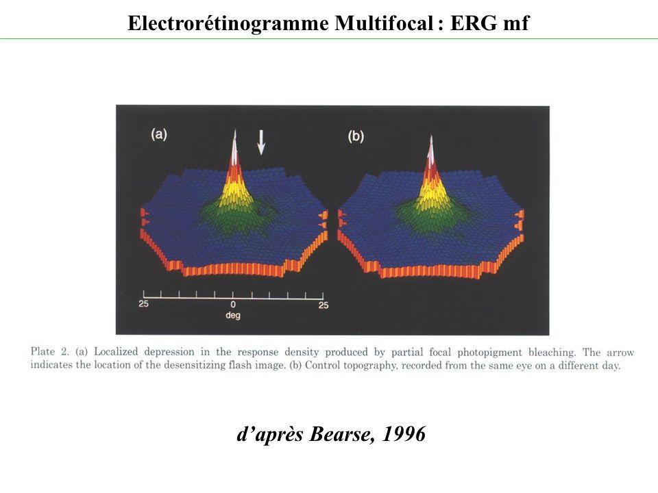 d'après Bearse, 1996 Electrorétinogramme Multifocal : ERG mf
